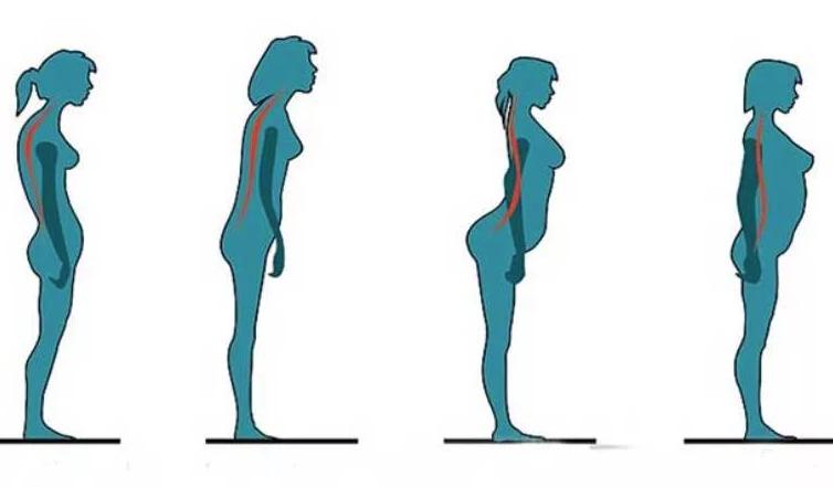 Opublikowałem już to zdjęcie w moim artykule o postawie. Najlepiej pokazuje bezpośrednią zależność brzucha od ułożenia pleców.